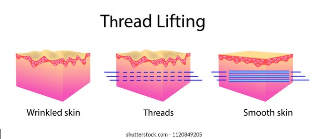 Thread lifting, vector illustration and skin cells, before after effect