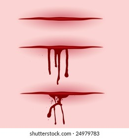 Three illustrated open wounds with blood poring from them
