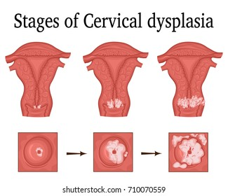 The three stages of cervical dysplasia - a potential premalignant condition