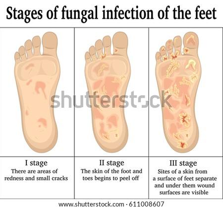 feet sites