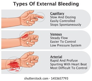 Three Types Of External Bleeding Hemorrhage Classification Capillary Venous And Arterial And Definition Medical Education Vector illustration