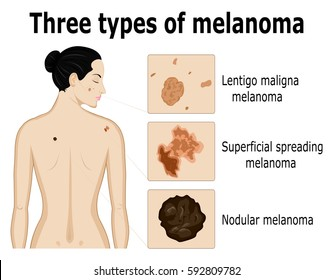 Three types of melanoma that for example located on the back and face of the woman