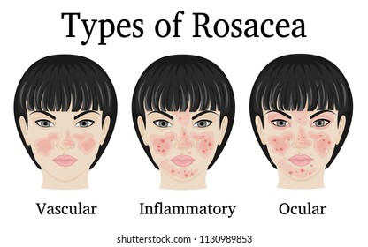 Three types of Rosacea - vascular, inflammatory and ocular for example depicted on the face of a young woman