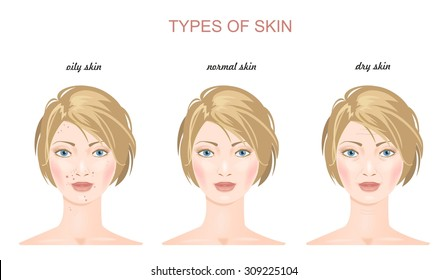 Three woman faces. Types of skin: oily, normal and dry. Trouble and perfect skin. Vector