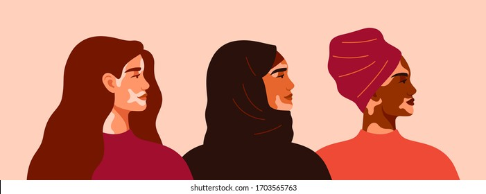 Three women with vitiligo of different nationalities standing together. Concept to support people living with vitiligo and to build awareness about chronic skin disorder.Vector illustration