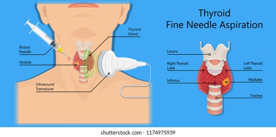 Thyroid Cancer Images Stock Photos Vectors Shutterstock