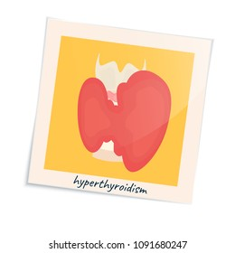 Thyroid gland disorder poster. Hyperthyroidism goiter symbol in a photo frame. Cute unhealthy internal body organ icon in cartoon style. Human endocrine system. Medical vector illustration.