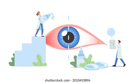 Tiny Doctors Characters Dripping Drops in Huge Human Eye Suffering of DES, Dry Eyes Syndrome and Conjunctivitis Disease. Medical and Pharmaceutical Vision Treatment. Cartoon People Vector Illustration