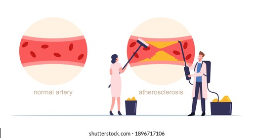 Tiny Medic Characters Cleaning Human Blood Artery of Cholesterol Plaque Formation. Atherosclerosis Infographics with Normal and Diseased Blood Vessel, Health Care. Cartoon People Vector Illustration