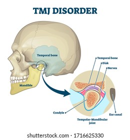 TMJ disorder vector illustration. Labeled jaw condition educational scheme. Diagram with joint clicking and pain anatomical structure and explanation. TMJD syndrome with mandibular movement closeup.