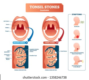 Tonsil stones vector illustration. Labeled medical tonsillolith symptoms scheme. Healthy respiratory anatomy structore and cross section. Bacterial diagnosis with bad breath, sore throat and clumps.
