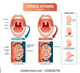 3d tonsil diagram wiring diagram rh w16 jusos loerrach de