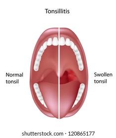 Tonsils Anatomy Images, Stock Photos & Vectors   Shutterstock