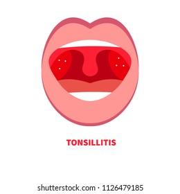 Tonsillitis, angina, sore throat, cold throat, inflamed tonsils, open mouth with inflammation of throat, mouth with red tonsils, pus on tonsils. Vector cartoon flat illustration