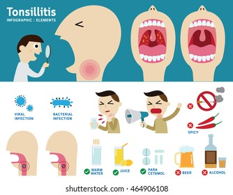 tonsillitis infographic element.