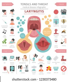Tonsils and throat diseases. Laryngitis symptoms, treatment icon set. Medical infographic design. Vector illustration