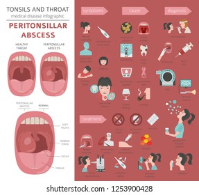 Tonsils and throat diseases. Peritonsillar abscess symptoms, treatment icon set. Medical infographic design. Vector illustration