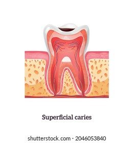 Tooth anatomy with superficial caries realistic vector illustration