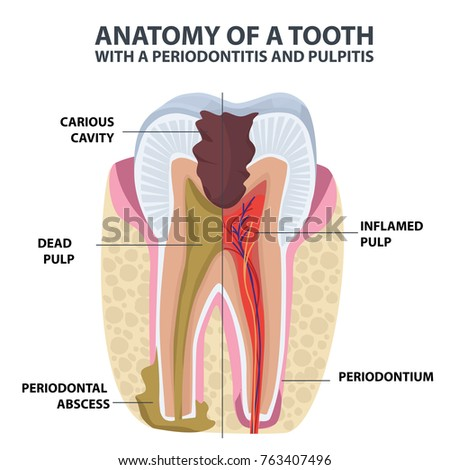 Tooth Anatomy Vector Dental Infographics Enamel Stock Vector ...