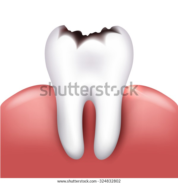 Tooth with caries, tooth decay. White background