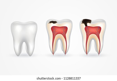 Tooth caries and healthy tooth. Superficial caries; deep caries; enamel and dentin decay; periodontitis. 3d realistic tooth inside and out.