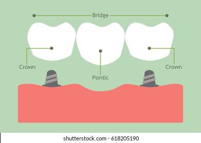 tooth cartoon vector, dental bridge