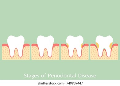tooth cartoon vector flat style for design - step of periodontal disease / periodontitis / gingivitis / gum disease, dental problem