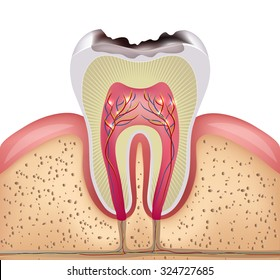 Tooth cross section with dental caries, detailed illustration