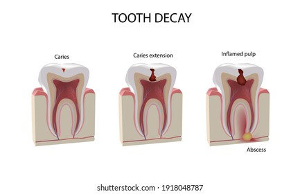 Tooth damage stages, realistic illustration, dental