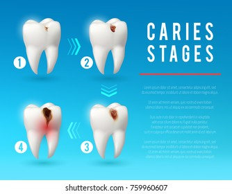 Tooth decay 3d vector poster. Teeth on different stages of dental caries development. Enamel and dentin decay, pulp decay and pulp infection banner for dentist office, dentistry clinic design