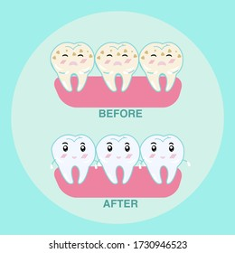 Tooth decay and healthy tooth for dental  clinic , before and after. Flat vector illustration.
