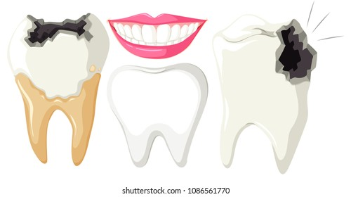 Tooth Decay on White Background illustration
