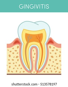 Tooth diseases: gingivitis, vector cartoon illustration