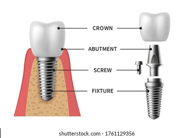 Tooth implant. Realistic implant structure pictorial models crown. Abutment, screw denture orthodontic implantation teeth. stomatology clinic concept vector set