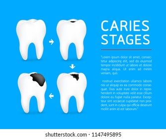 Tooth on different stages of dental caries development. Enamel caries, Dentin caries, Pulpitis and Periodontitis. Design for banner and poster. Illustration on blue background.