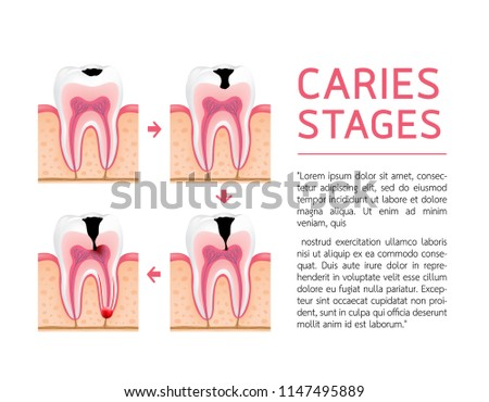 Tooth on different stages of dental caries development. Enamel caries, Dentin caries, Pulpitis and Periodontitis. Design for banner and poster. Illustration on white background.
