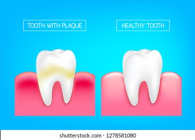 Tooth with plaque and healthy tooth comparision.  Teeth Whitening. Dental care Concept. Oral Care, teeth restoration. Yellow and white teeth.