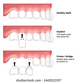 tooth replacement dental medical vector illustration isolated on white background