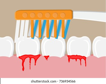 Toothbrush cleans teeth. periodontal disease, bleeding gums. Brushing teeth. Dental equipment. Hygiene and oralcare. Vector illustration in flat style