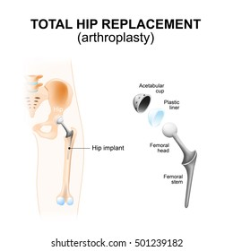 Total hip replacement or arthroplasty and hip Implant
