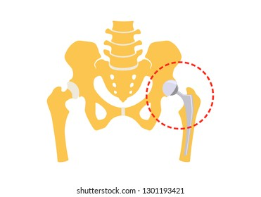 Total hip replacement. Vector illustration. Isolated on white background