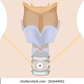 Tracheostomy Illustration