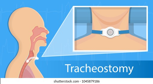 Tracheostomy surgical patient treatment procedure medical
