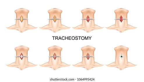 Tracheostomy tube in-situ