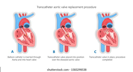 Transcatheter aortic valve replacement implantation TAVR TAVI minimally invasive surgery for treatment Aortic stenosis AS blocked