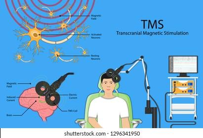 Transcranial magnetic stimulation TMS non invasive field