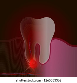 The transition from a real tooth to a point X-ray effect with a point of pain and inflammation. Medical illustration of tooth root inflammation, tooth root cyst, pulpitis.