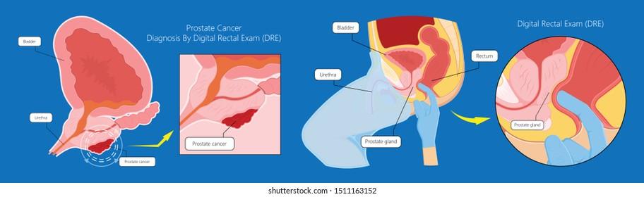 examen de prostatitis dre