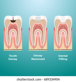 Treatment Of Caries. Dental Filling. Dental Caries Detailed Isolated On A Background. Vector Illustration. Stomatology. Teeth And Tooth Concept Of Dental