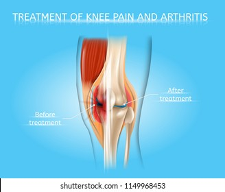 Treatment of Knee Pain and Arthritis Realistic Vector Medical Poster or Scheme with Damaged by Disease and Healthy Human Knee Joint Before and After Treatment, Anatomical Cross Section Illustration